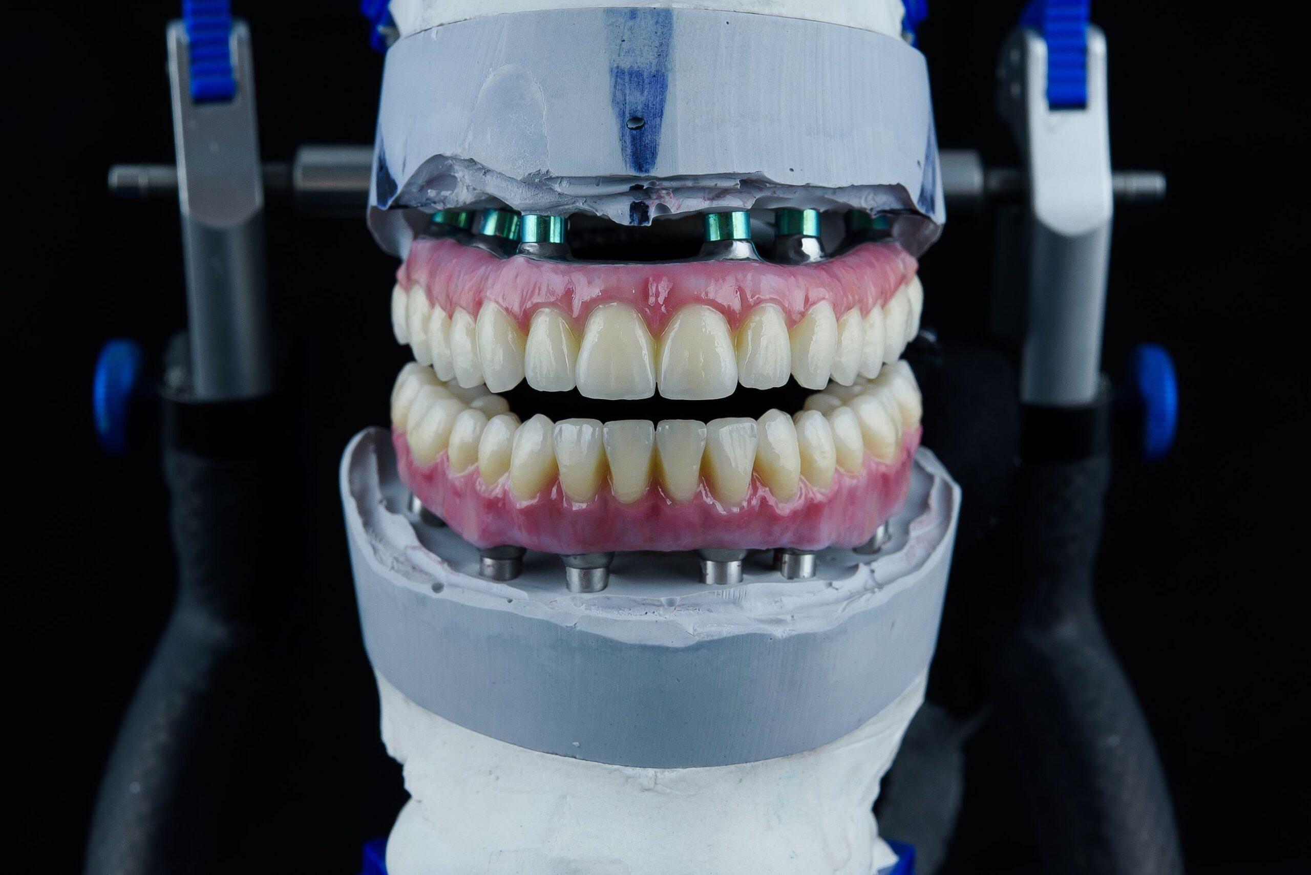 Biomecánica en prótesis sobre implantes - Blog - Fundación Osteosite
